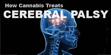 How Cannabis Treats Cerebral Palsy