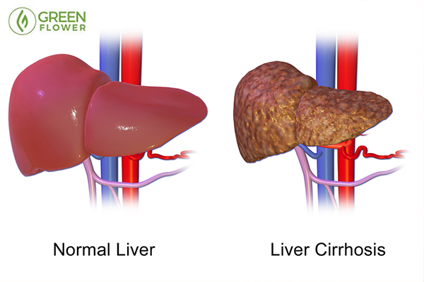 Why Cannabis is Life-Changing for Liver Disease